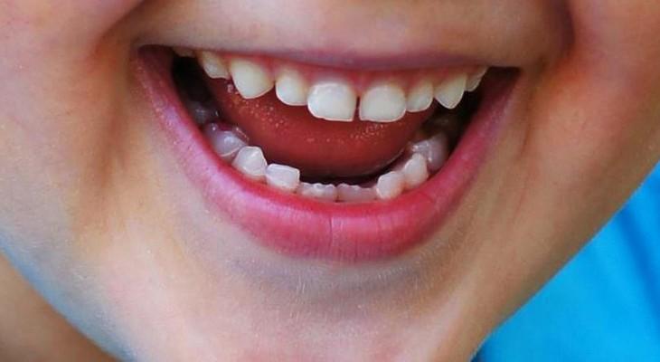 Кариес молочных зубов у детей раннего возраста (фото) и 33